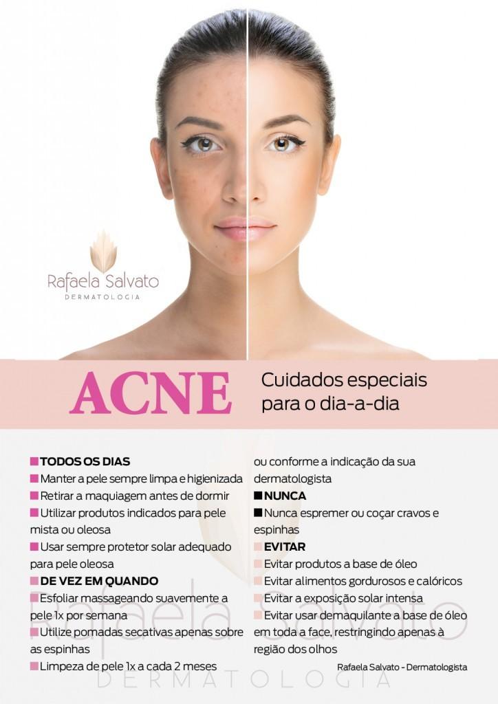 acne infograma rafaela salvato dermatologia