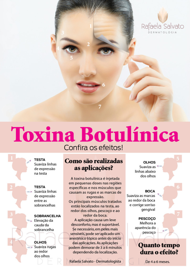 botox hiperidrose infografico Rafaela Salvato Dermatologia