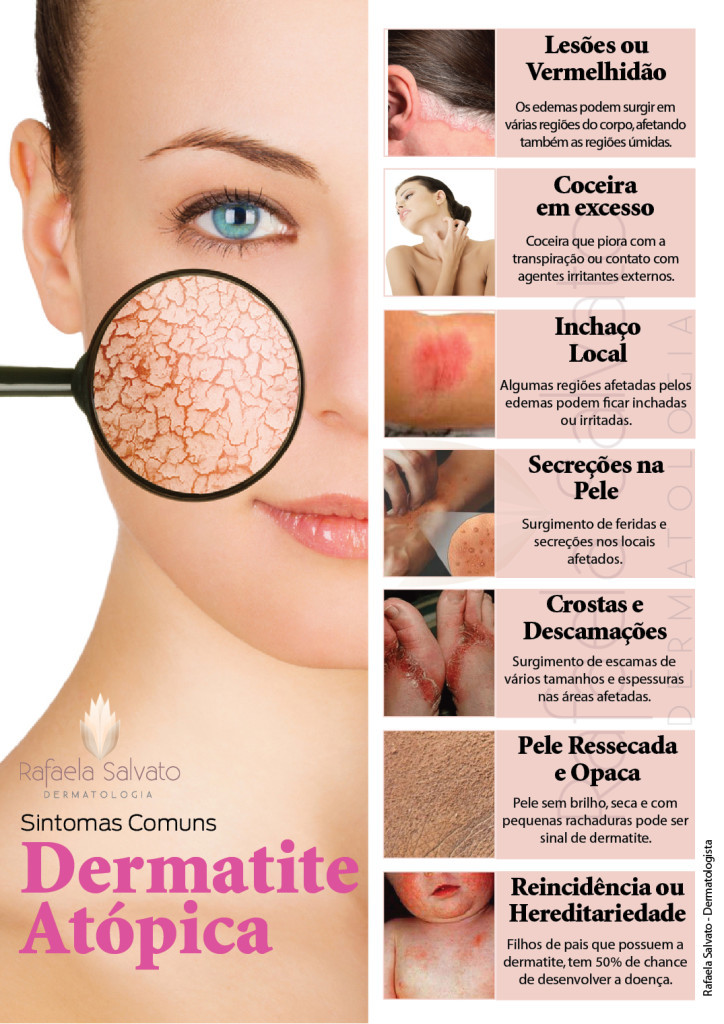 dermatite atópica infografico Rafaela Salvato Dermatologia
