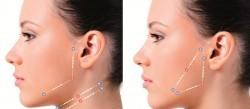sutura silhouette Dermatologista Florianópolis