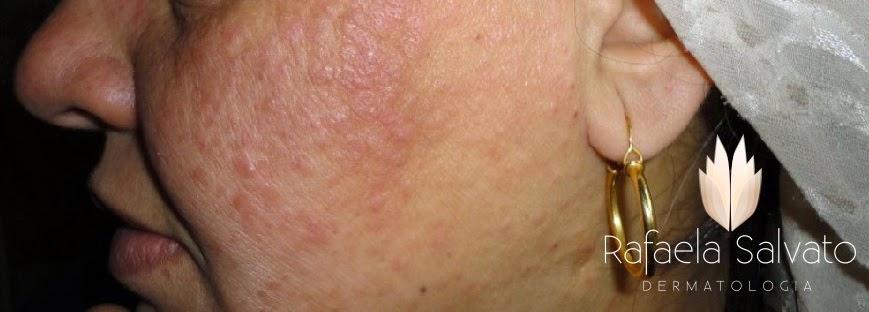 dermatoses dermatologista florianópolis