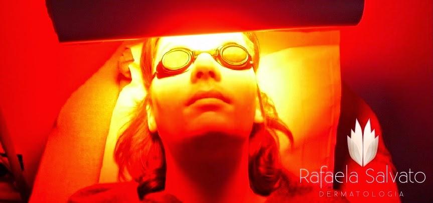 Terapia fotodinamica em dermatologia 19