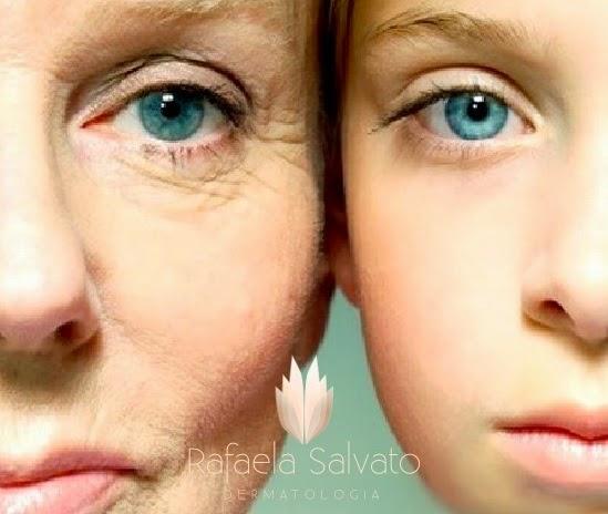 rugas tratamento dermatologista florianopolis