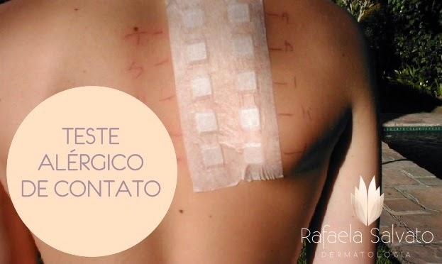 teste alergico de contato dermatologista em florianopolis