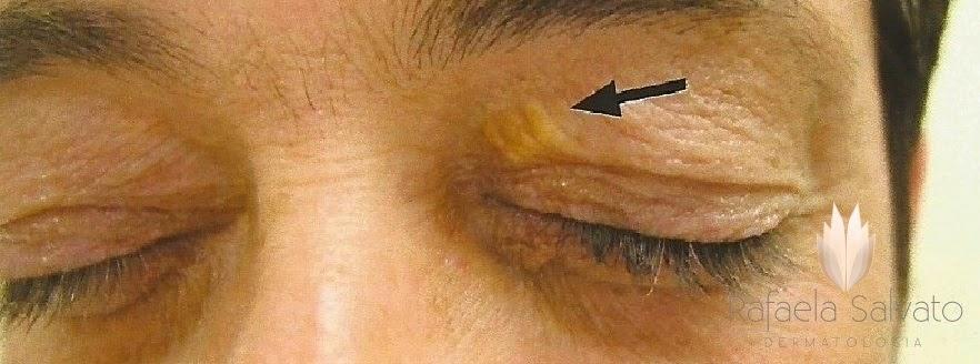 xantelasma dermatologista